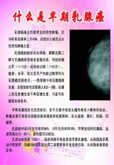 早期乳腺癌科普(展板80 120)图片
